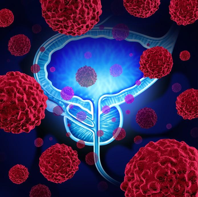 Prostate tumor
