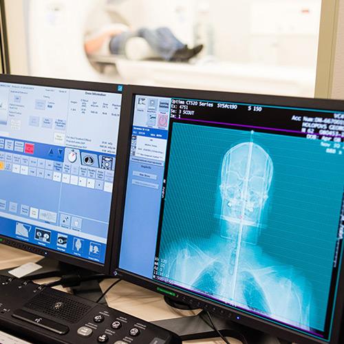 Показания и противопоказания к стереотаксической радиохирургии